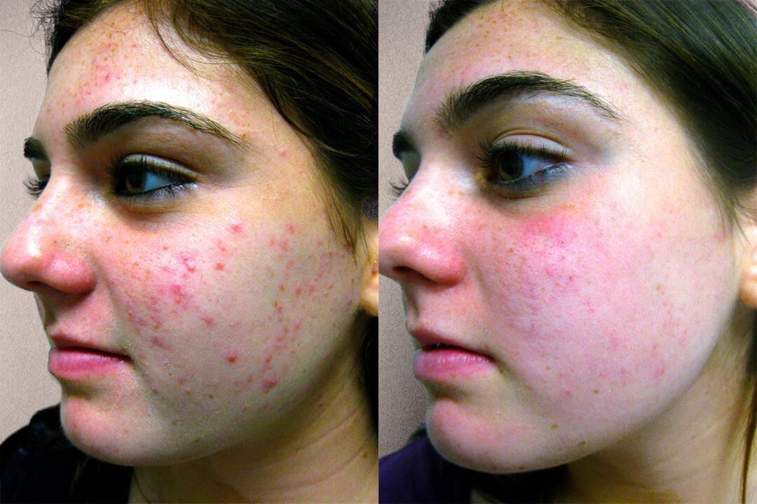 akne behandling laser