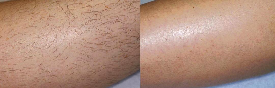 Ipl behandling hårborttagning