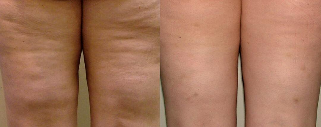 Cellulitbehandling före och efter