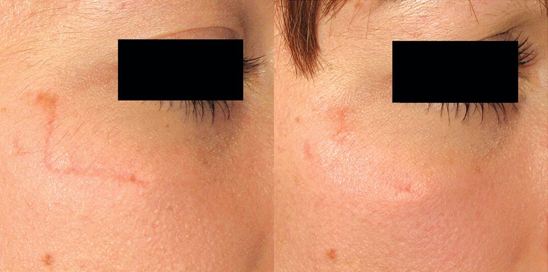 laserbehandling ansikte malmö
