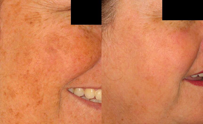 laserbehandling ansikte stockholm
